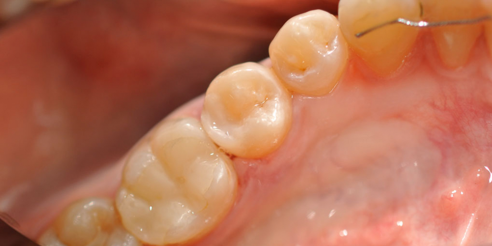 Жалобы на боль в зубе на холодное и при приеме пищи