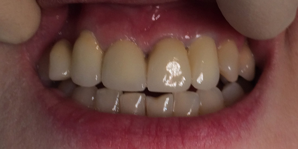 Фото после фиксации керамического моста. Мостовидное протезирование 6 передних зубов