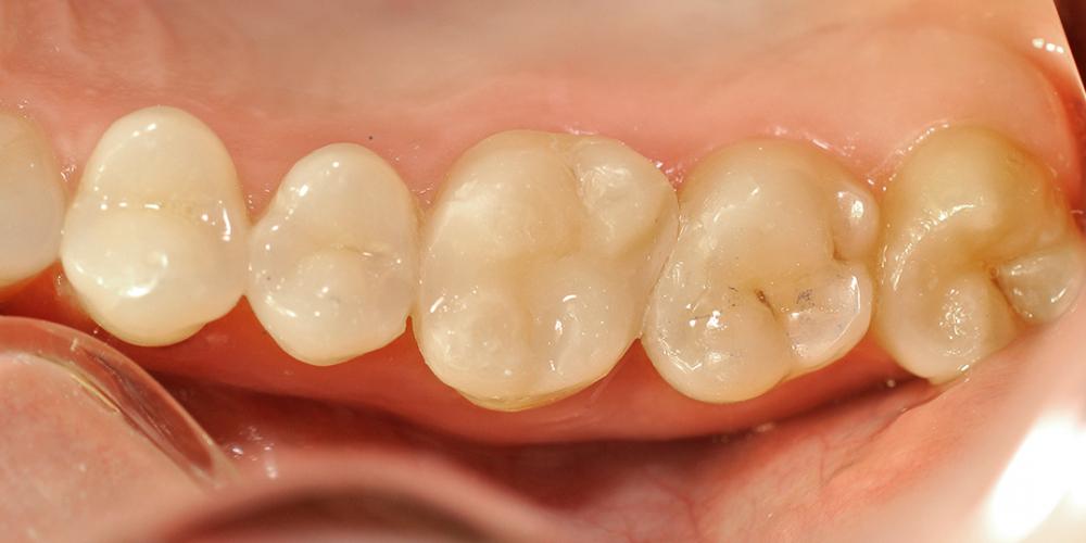 Результат лечения кариеса и замены пломбы, зуб 2.6