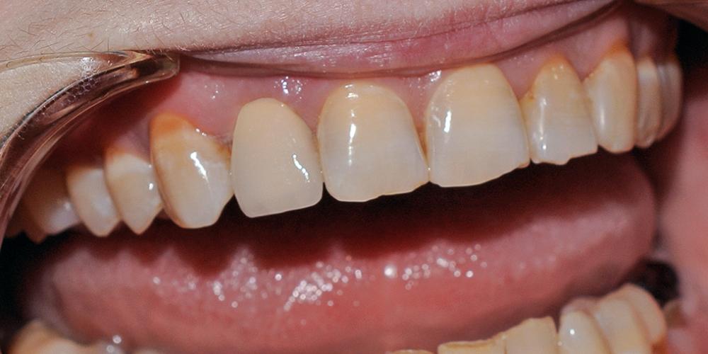 Восстановление зуба металлокерамической коронкой Noritake, Япония