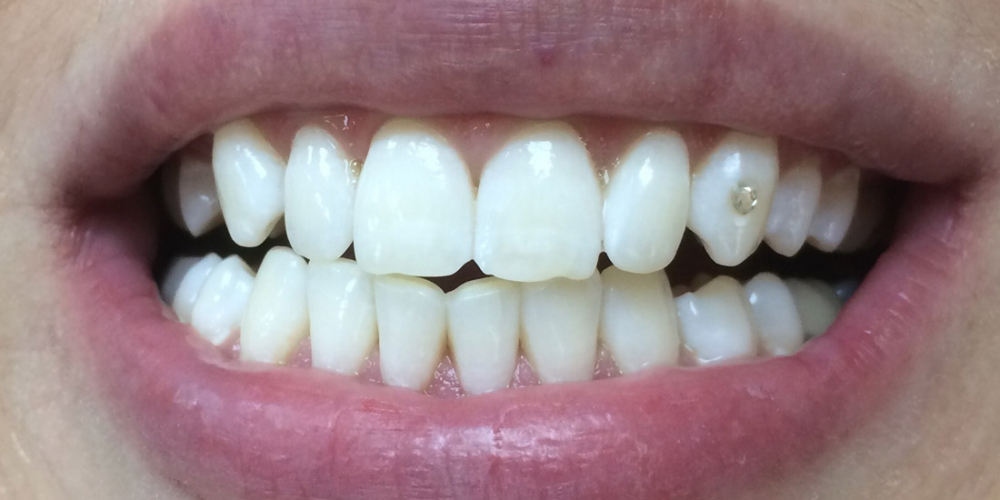 Отбеливание зубов в самаре отзывы