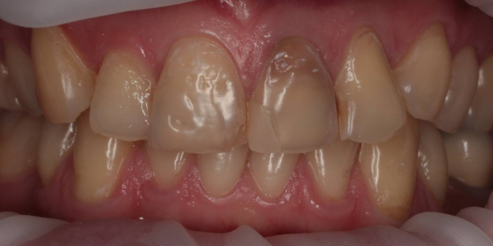 Восстановление зубов безметалловыми тонкостенными коронками