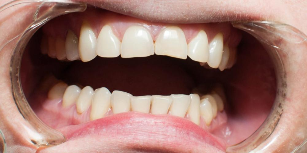 Создание красивой улыбки. Эстетическая реставрация передних зубов