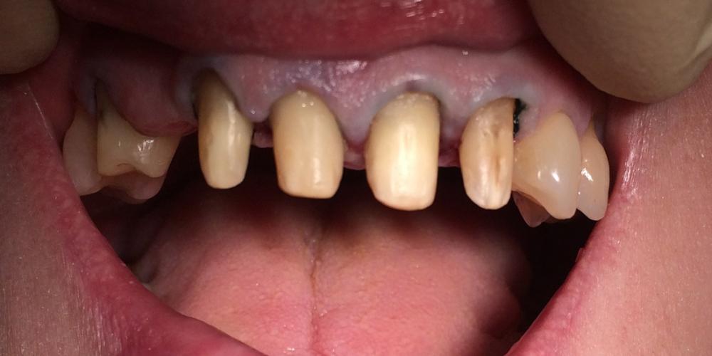 Фото после препарирования. Мостовидное протезирование 6 передних зубов