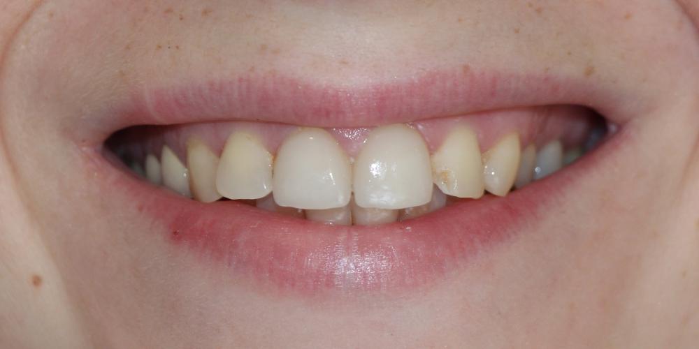 Восстановление зубов керамическими винирами