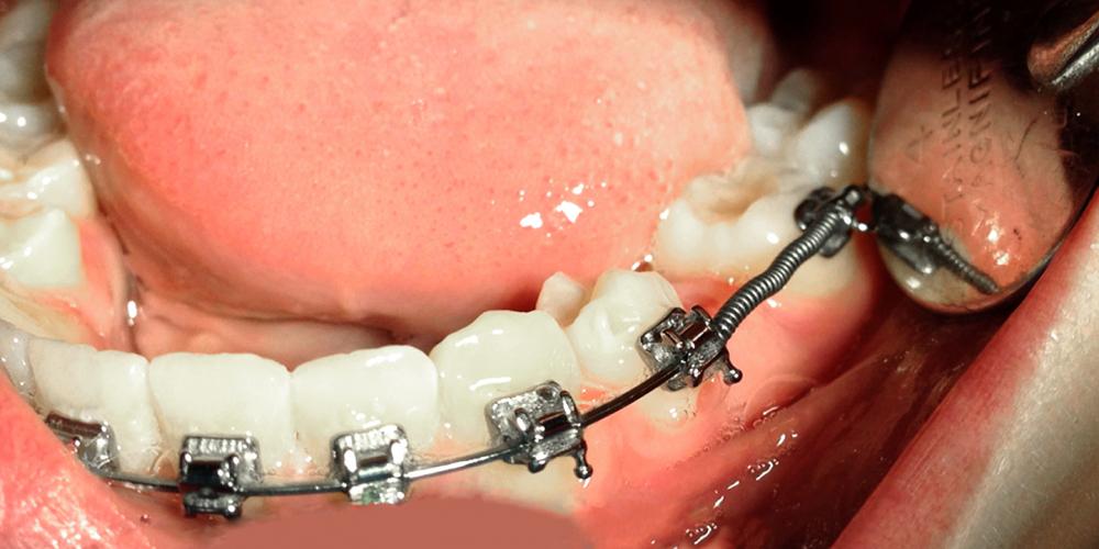 Восстановление не прорезавшегося зуба