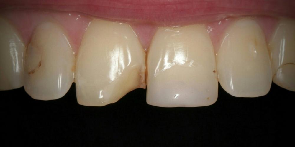 Эстетическая реставрация переднего зуба композитными материалами