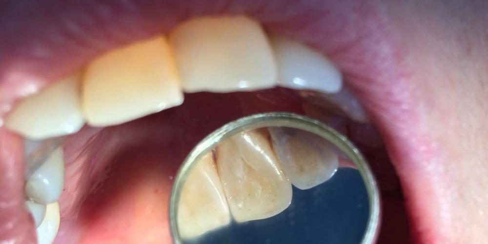 Результат замены пломбы на переднем зубе