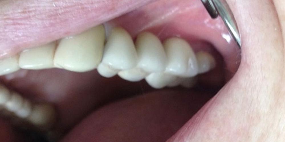 Имплантация и протезирование трех зубов на имплантах