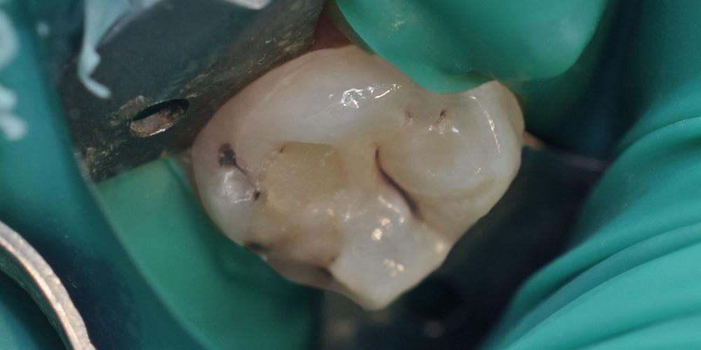 Жалобы на болевые ощущения в 27 зубе от холодных температур