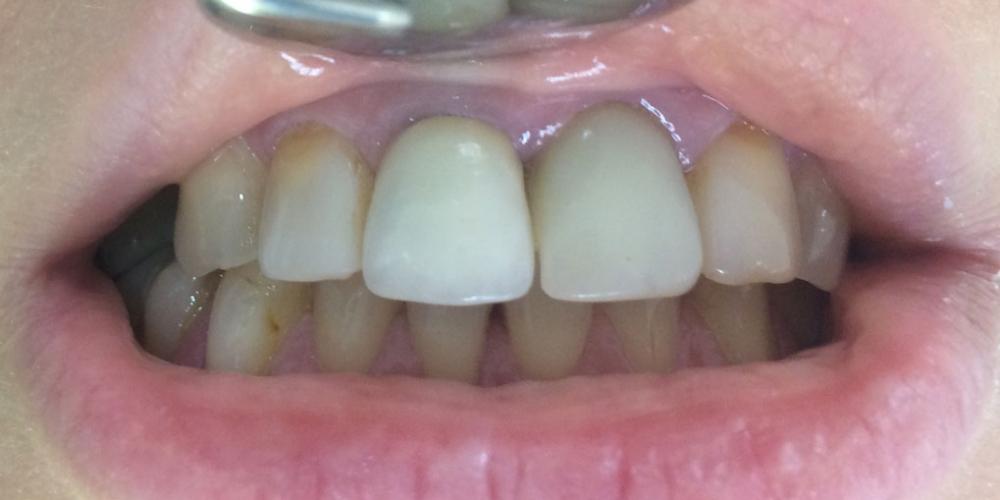 Жалобы на неудовлетворительную эстетику передних зубов: цвет и форма