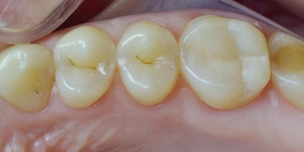 Жалобы на болевые ощущения в 17 зубе от холодных температурных раздражителей
