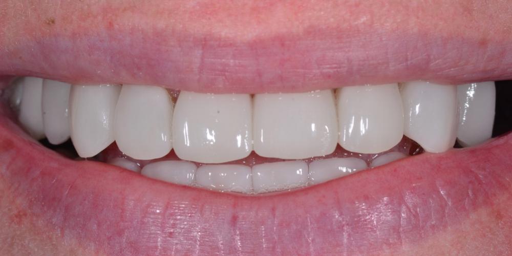 Восстановление отсутствующих зубов имплантатами и безметалловыми коронками