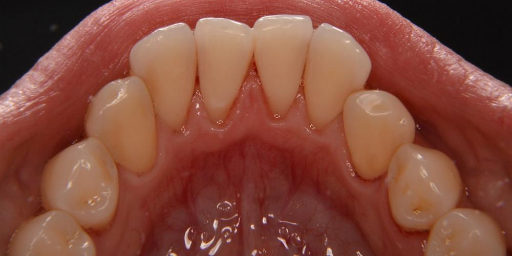 Низ после Профессиональная гигиена полости рта