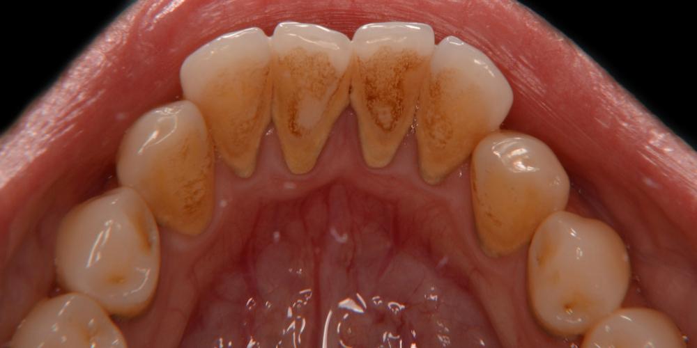 Низ до Профессиональная гигиена полости рта