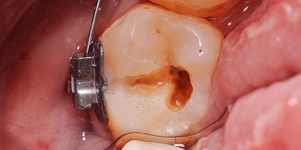 Профессиональная гигиена полости рта, лечение кариеса, фото до и после