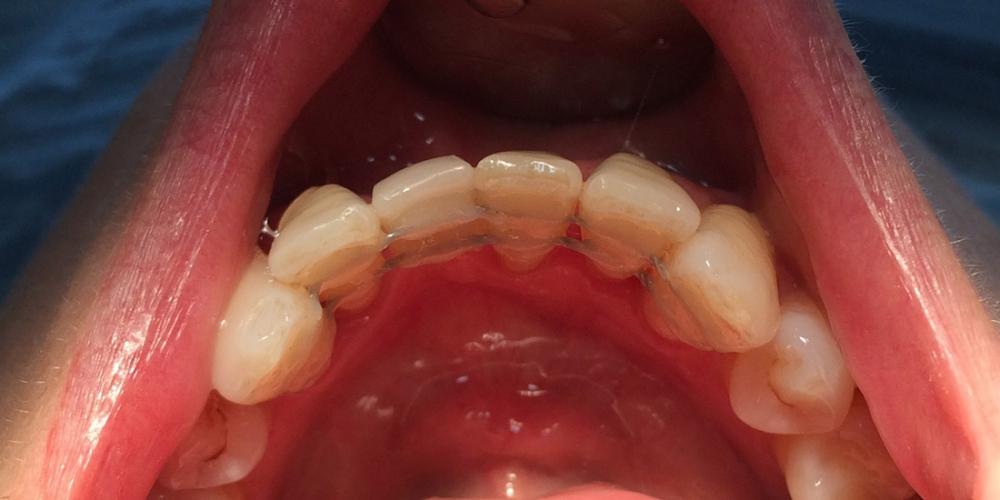 Шинирование переднего зуба (замещение временным зубом)