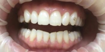 Отбеливание зубов системой Opalescence Boost PF фото до лечения