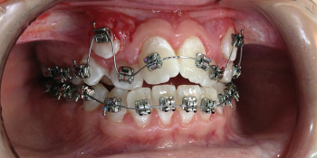 Исправление прикуса самолигирующимися металлическими брекетами с удалением премоляров фото до лечения