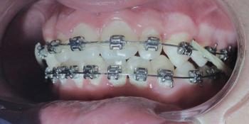 Лечение металлическими брекетами с применением термоактивных дуг фото после лечения