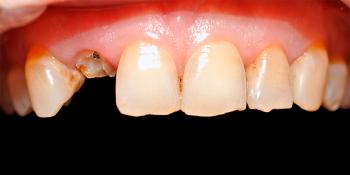 Срочно восстановить сломанный зуб фото до лечения