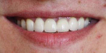 Комплексная косметическая реконструкция улыбки. Керамика на цирконе фото после лечения