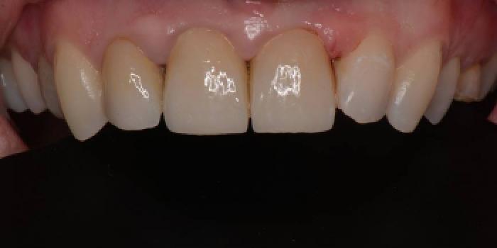 Восстановление зубов керамическими коронками Емах фото после лечения