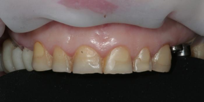 Восстановление зубов керамическими коронками из оксида циркония фото до лечения