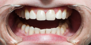 Создание красивой улыбки. Эстетическая реставрация передних зубов фото после лечения