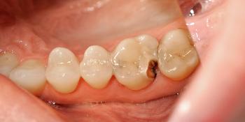 Результат лечения кариеса и замены пломбы, зуб 2.6 фото до лечения