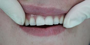 Лечение среднего кариеса 11 зуба с последующей реставрацией фото после лечения