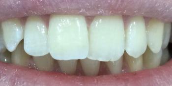 Отлом зуба и на плохая эстетика фото после лечения