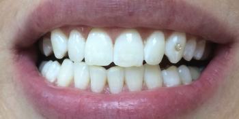 Отбеливание зубов системой Opalescence Boost PF фото после лечения