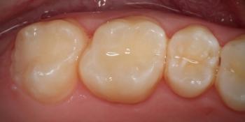 Лечение глубокого кариеса светоотверждаемыми композитными материалами фото после лечения