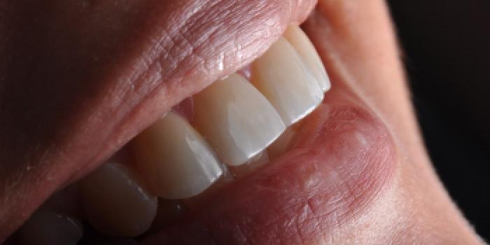 Керамические ультратонкие виниры 0.4 мм фото после лечения