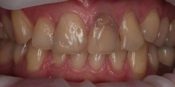 Восстановление зубов безметалловыми тонкостенными коронками фото до лечения