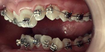Лечение металлическими брекетами с применением термоактивных дуг фото до лечения