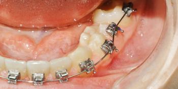 Восстановление не прорезавшегося зуба фото после лечения