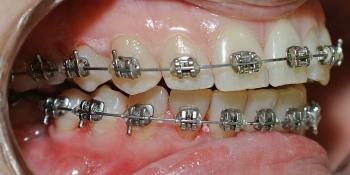 Снятие минерализованных и неминерализованных наддесневых зубных отложений фото после лечения