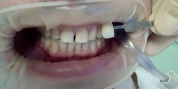 Отбеливание зубов Opalescence Boost фото до лечения