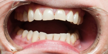 Создание красивой улыбки. Эстетическая реставрация передних зубов фото до лечения