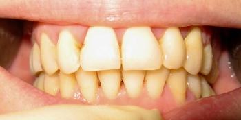 Исправление прикуса самолигирующей брекет системой и ретейнерами фото после лечения