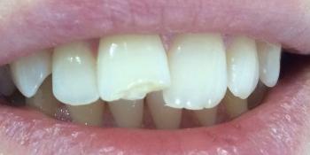 Отлом зуба и на плохая эстетика фото до лечения