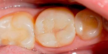 Самопроизвольные длительные ноющие боли в зубе 46 фото после лечения