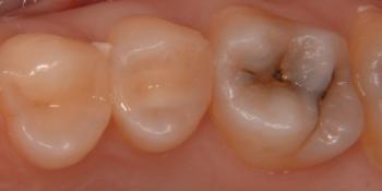 Лечение под инфильтрационной анестезией глубокого кариеса фото до лечения