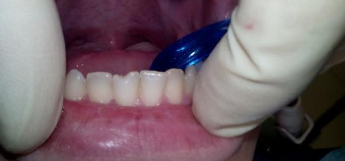 Эстетические реставрации зубов фото до лечения
