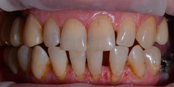 Восстановление отсутствующих зубов имплантатами и безметалловыми коронками фото до лечения
