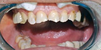 Восстановление фронтальной группы зубов пломбой фото до лечения