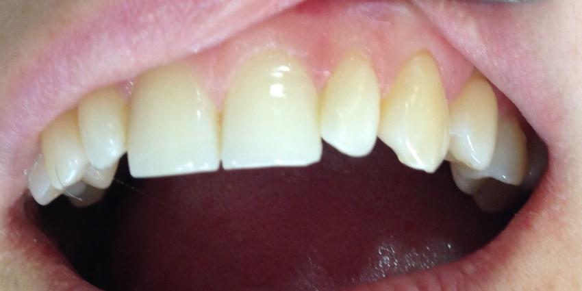 Лечение кариеса переднего зуба