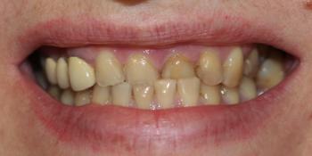 Комплексная косметическая реконструкция улыбки. Керамика на цирконе фото до лечения